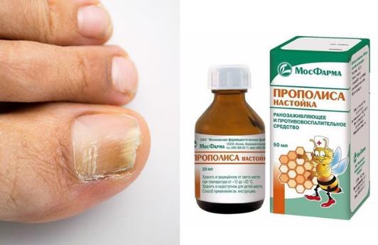 лечение настойкой прополиса