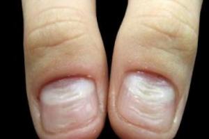 поперечная волнистость ногтя