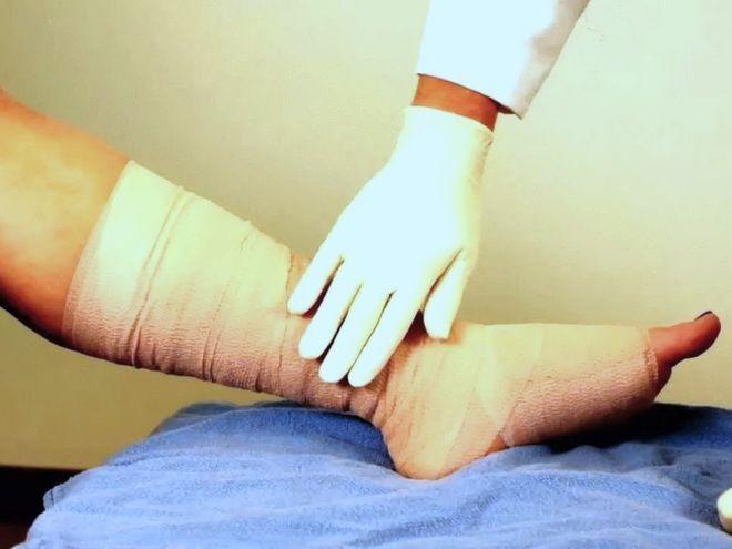 Бинтование ноги при кровотечении