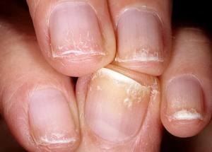 трещины на ногтях причины