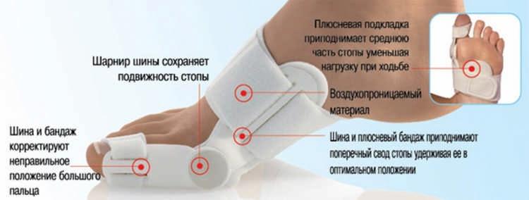 косточка на ноге