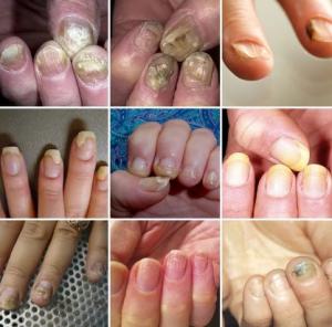 грибок ногтей факторы риска