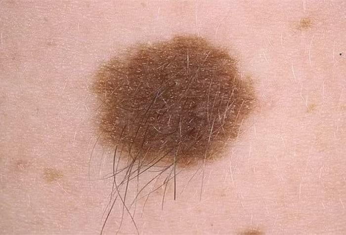 Белые пятна на коже: причины возникновения и методы лечения