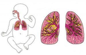 воспаление легких у новорожденного