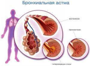 Смешанная астма