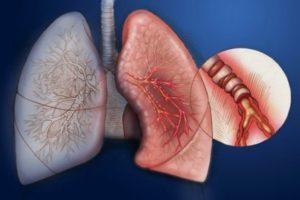 хроническая форма болезней бронхов и легких