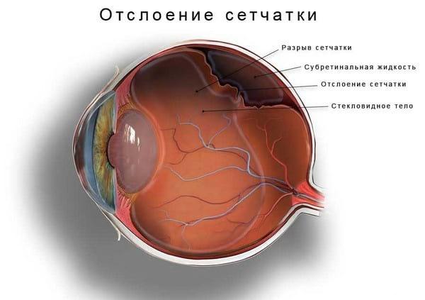 Болезни глаз у человека список заболеваний