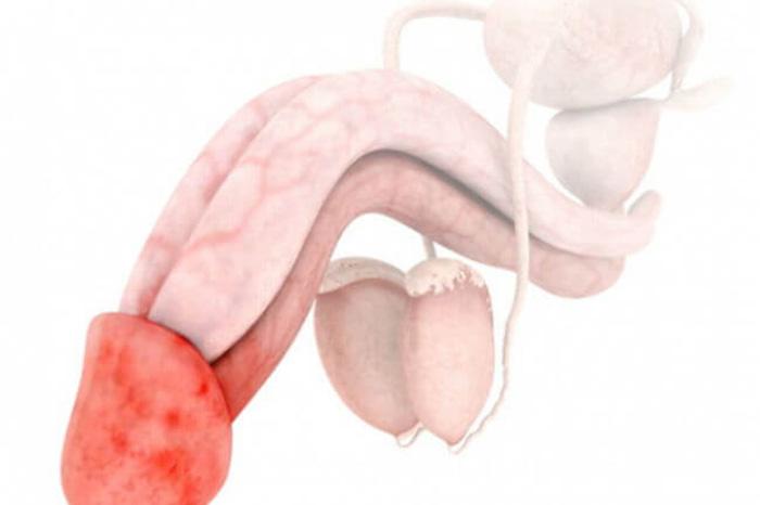 От простатита краснеет головка члена откуда появляется хронический простатит