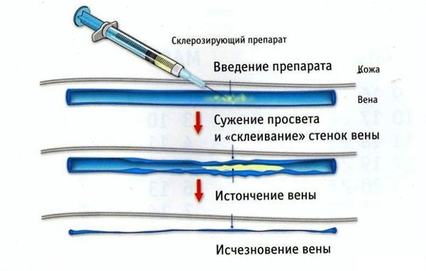 Схема склерозирования