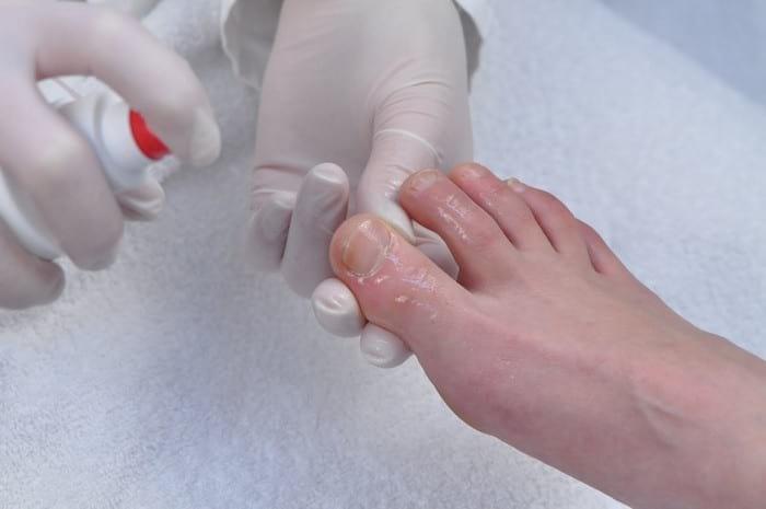 эффективное лечение грибка ногтей на ногах