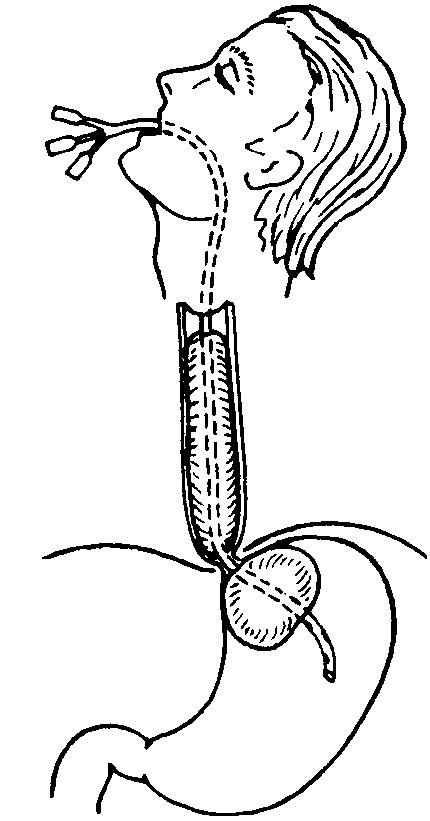 Баллонная тампонада пищевода