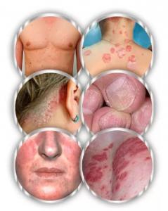 заболевания, вызванные грибками