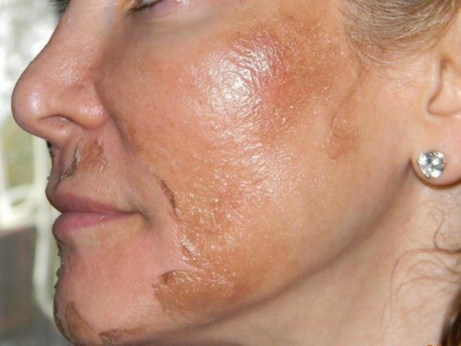 Ожог лица после пилинга