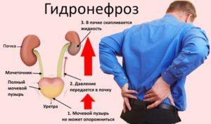 Наглядная схема причин образования гидронефроза