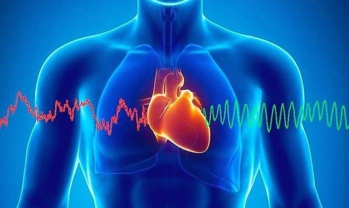 Аритмия сердца - что это такое, как ее лечить и какие бывают последствия