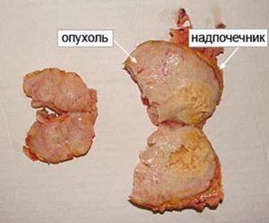 фото опухоли