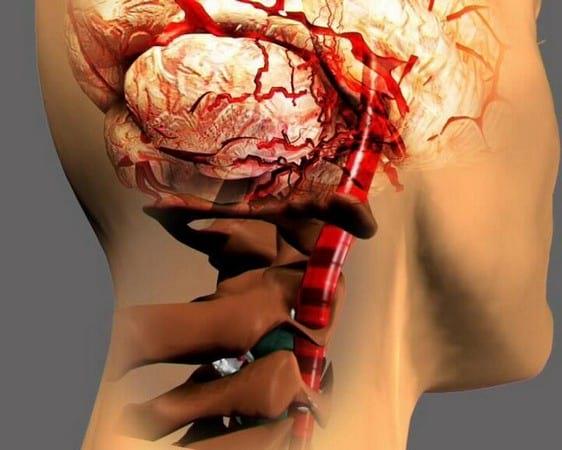 Мази при остеохондрозе шейного отдела: как правильно применять