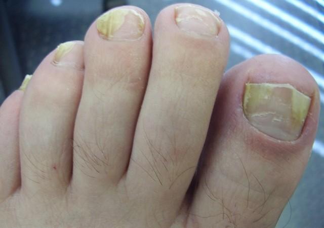 Ногти пораженные
