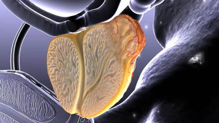 Простатит и фиброза простатит можно ли яйца