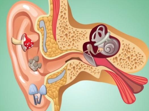 Симптомы и методы лечения грибка в ухе (отомикоза)