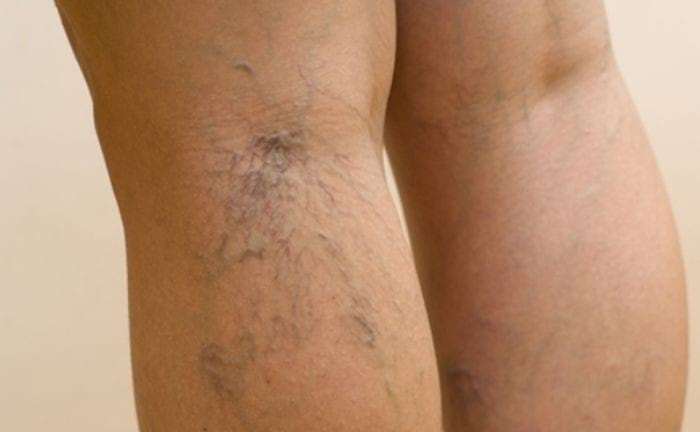 Симптомы варикоза вен ног, малого таза, пищевода и кишечника