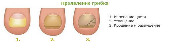 проявления грибка
