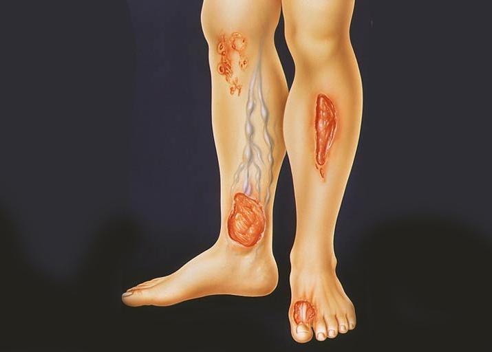 Трофические язвы на ногах в картинках
