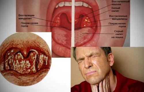 грибок горла