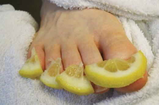 лечение лимоном грибка ногтей