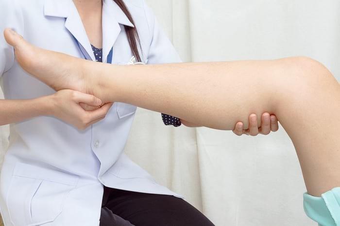 Основные симптомы варикоза вен: признаки, причины и профилактика
