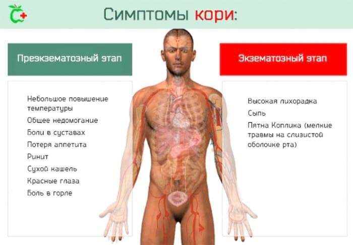 Симптомы кори у взрослых и способы лечения