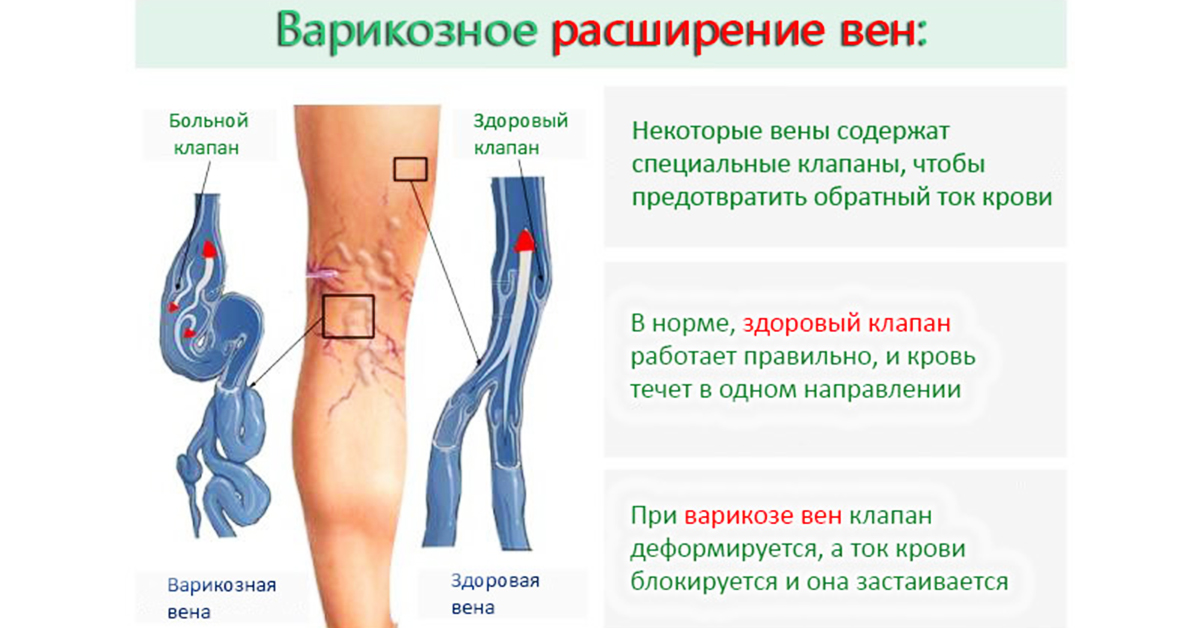Симптоматика варикоза