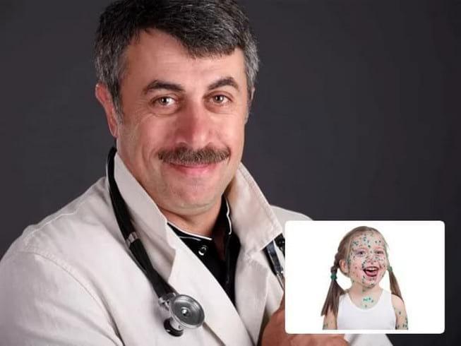 Ветряная оспа у детей: симптомы, лечение и профилактика