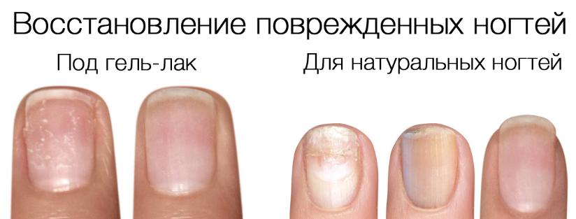 восстановление поврежденных ногтей