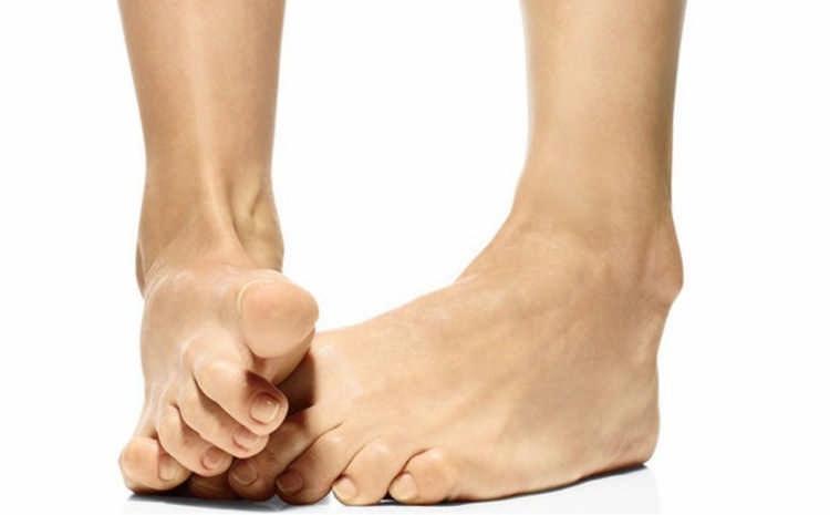 Народные методы от косточки на большом пальце
