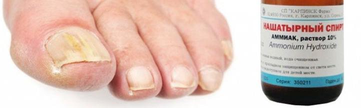 аммиак от грибка ногтей