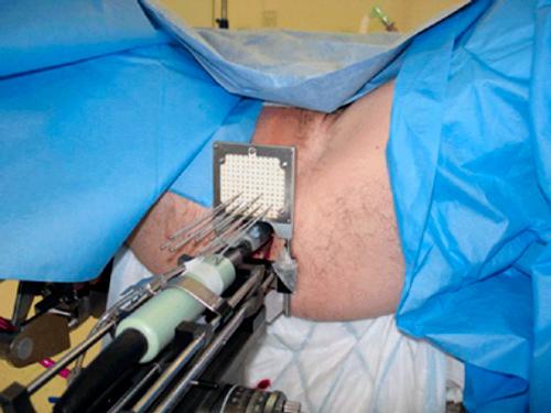 проведение брахитерапии