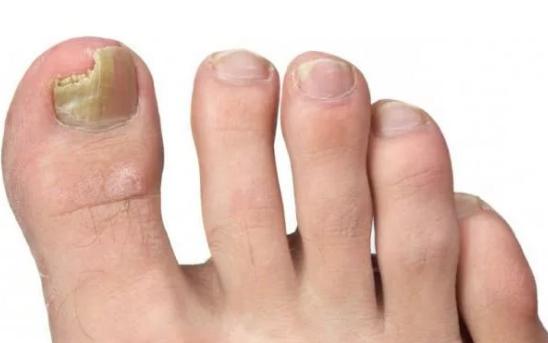 грибок на пальце ног