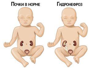 наглядная демонстрация как выглядит гидронефроз у новорожденного