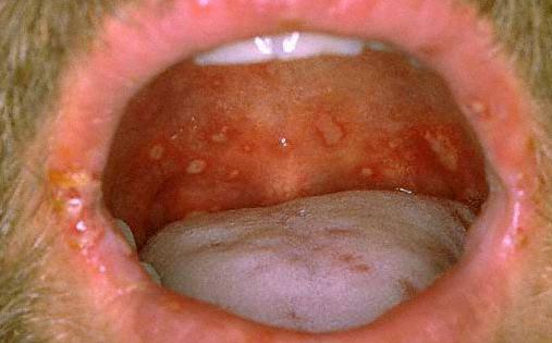 грибок в горле у взрослого мужчины