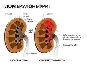 Схема почки с гломерулонефритом