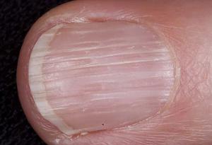 лечение продольной волнистости ногтей