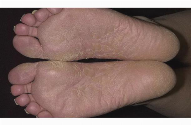 Грибок на ступнях ног